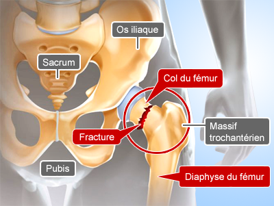 anatomie-col-du-femur-chirurgie-clinique-paris