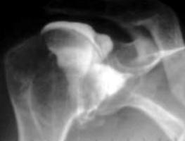 arthrographie-epaule-reparation-chirurgicale-tendons
