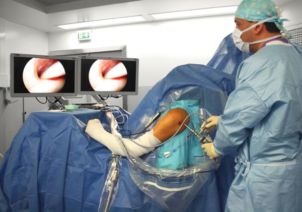 chirurgie-arthroscopie-epaule-paris-tunisie