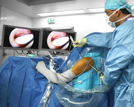 chirurgie-arthroscopie-evacuation-calcifications-epaule-paris