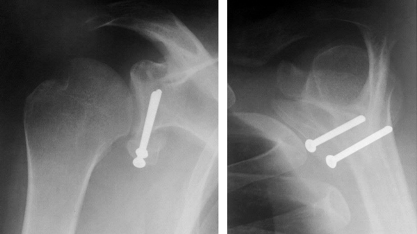chirurgie-paris-butees-de-l-epaule