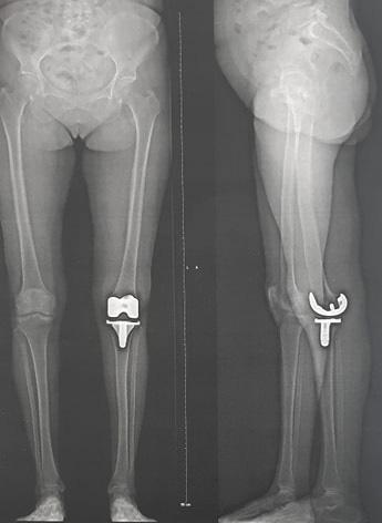 Chirurgie prothèse totale anatomique du genou.