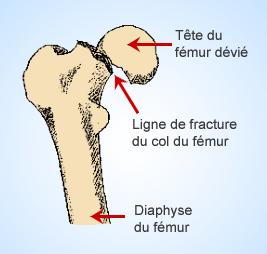 fracture-col-du-femur-paris-chirurgie