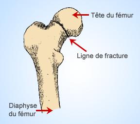 fracture-col-du-femur-pres-de-l-articulation-chirurgie-paris