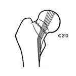 fracture-col-femur-complete-avec-deplacement-partiel-en-coxa-vara