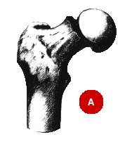 fracture-du-col-du-femur-sous-capitale