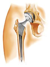 prothese-de-la-hanche-chirurgie-clinique-paris
