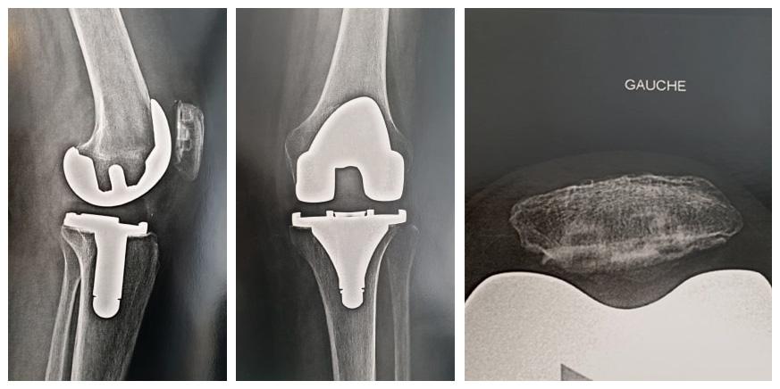 Prothèse totale anatomique du genou dans le cadre d'une arthrose associée à une ostéoporose tibiale.