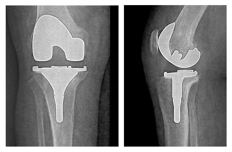 prothese-totale-anatomique-du-genou-paris-osteoporose-tibiale