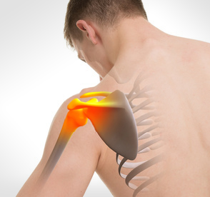symptome-douleur-epaule-arthrose