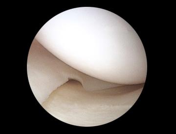 arthoscopie-du-menisque-paris