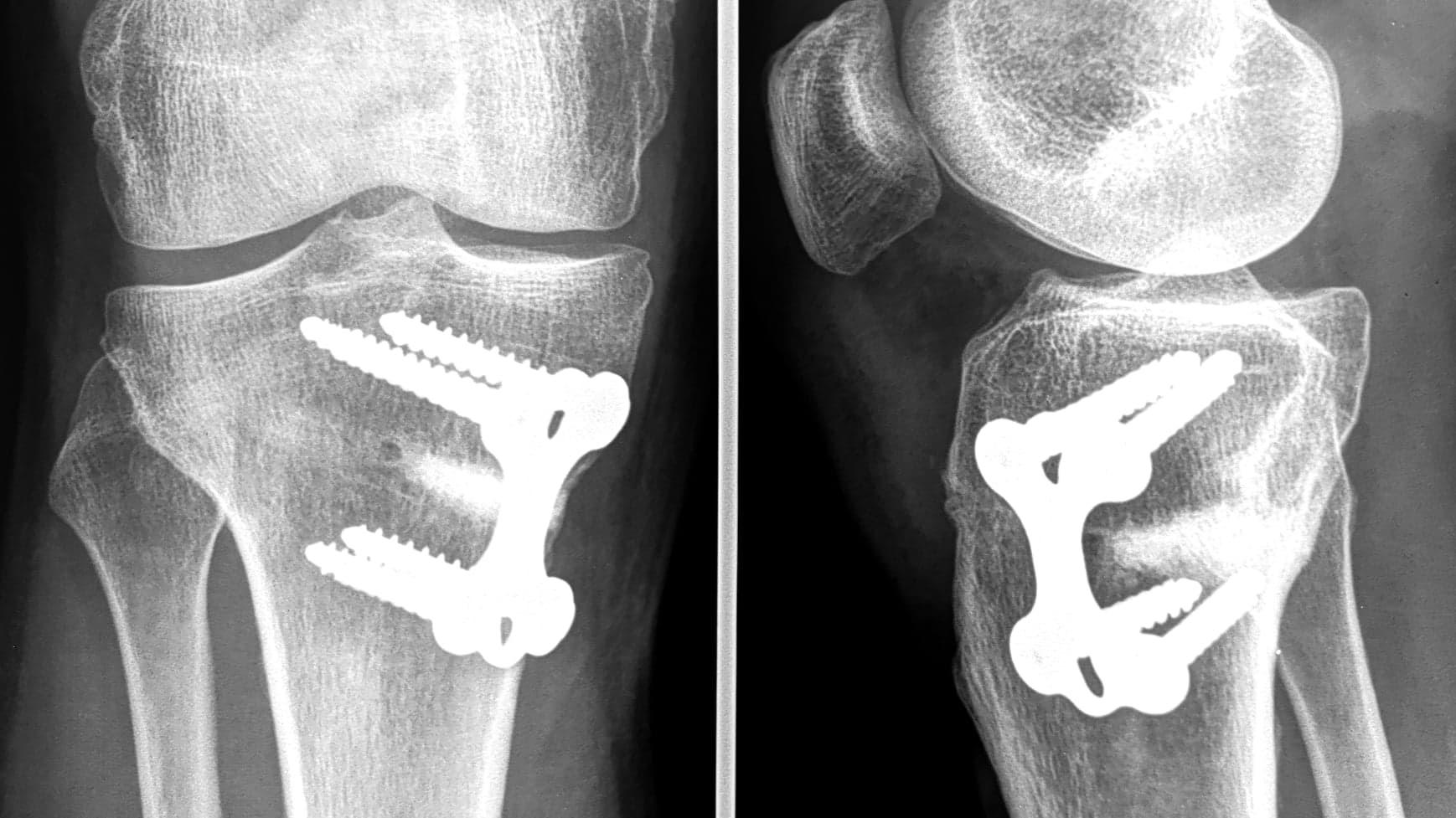 chirurgie-genou-correction-deformation-du-genou-paris-osteotomie-tibiale-dr-kassab