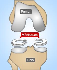 menisques-interne-externe-genou