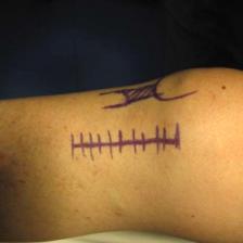 osteotomie-tibial-voie-d-abord-interne