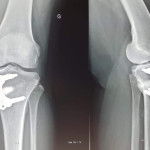 osteotomie-tibiale-chirugie-genou-paris
