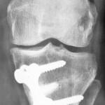 osteotomie-tibiale-face-profil