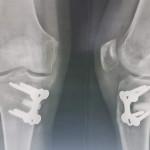 osteotomie-tibiale-paris-face-profil-chirurgie-paris