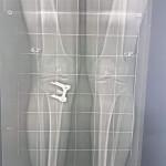 pangonogramme-genou-osteotomie-tibilale